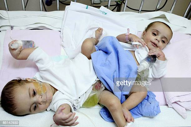Egyptian conjoined twins Hassan and Mahmud are seen at the National Guard hospital in the King Abdulaziz Medical City in Riyadh on February 27 2009...