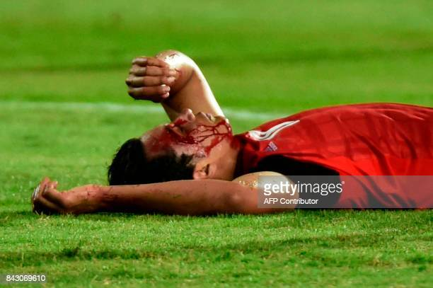 Egypts player Amr Gamal lays on the ground after he was injured during the FIFA World Cup 2018 qualification football match between Egypt and Uganda...