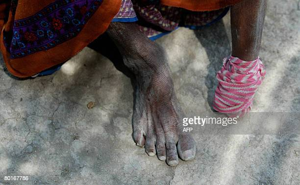 Eighty year old Indian woman Vahaliben Ramsingbhai Bhimani shows her bandaged amputated leg as she sits outside her home in the Little Rann of Kutch...