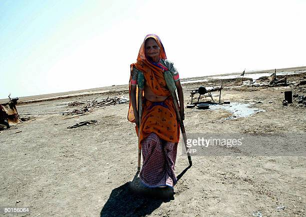 Eighty year old Indian woman Vahaliben Ramsingbhai Bhimani walks with the aid of crutches around her home in the Little Rann of Kutch in the...