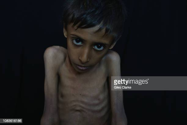 HOSPITAL ADEN YEMEN NOVEMBER Eightyear old Jaqoob who is suffering from severe acute malnutrition has been in hospital for over a month He was...