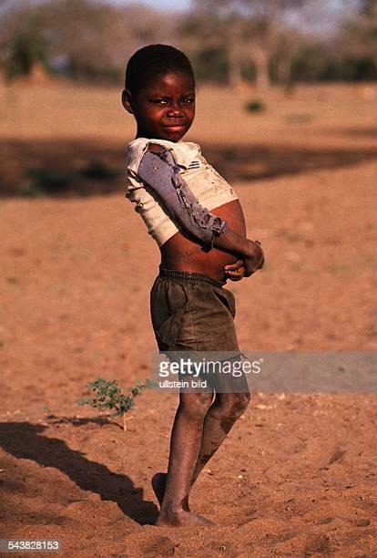 Ein Junge steht auf vertrocknetem sandigem Boden Er trägt zerrissene Kleidung und hat die Arme über seinem vom Hungerödem aufgeblähten Bauch...