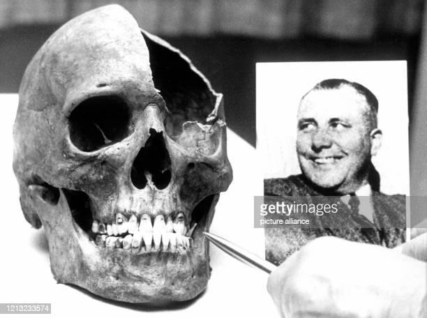 Einer der zwei Anfang Dezember 1972 bei Tiefbauarbeiten auf dem Gelände des Lehrter Bahnhofs in Berlin entdeckten Totenschädel Der abgebildete...