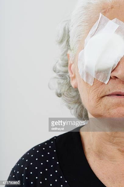 Elder female with eye patch