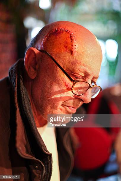 Elderly man with staple sutures in head