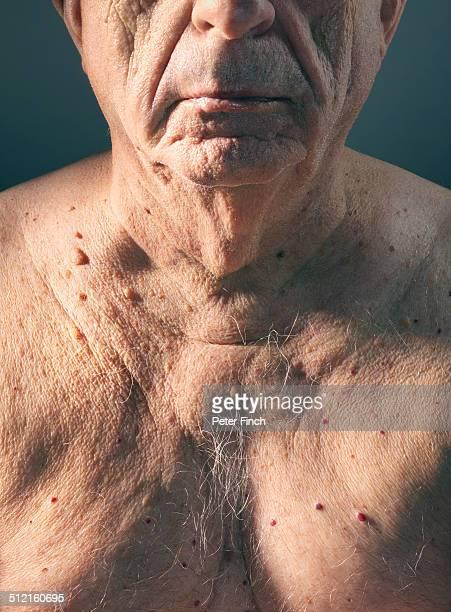 Elderly man's chest with moles