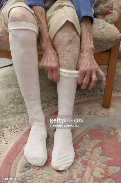 elderly woman putting on compression support stockings - varices fotografías e imágenes de stock