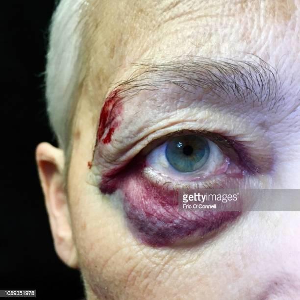 elderly woman with a black eye - blauer fleck stock-fotos und bilder