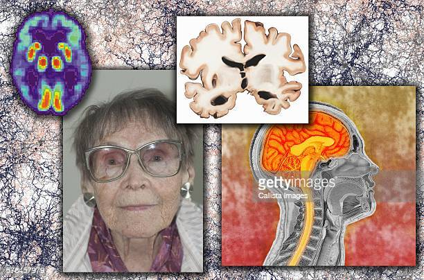 Elderly woman with Alzheimers disease, illustration of brain section from person with Alzheimers, scan of person affected by Alzheimers, illustration of plaque accumulation in Alzheimers