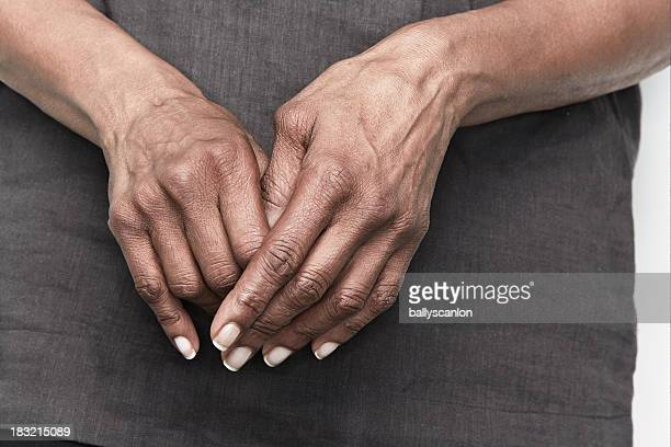 elderly woman with arthritic hands - deformed hand stock pictures, royalty-free photos & images