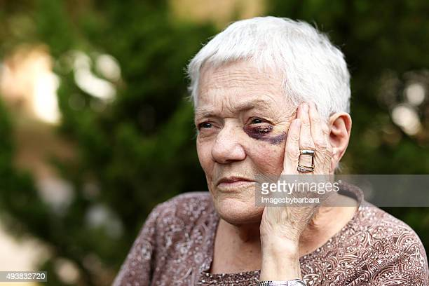 elderly woman with black eye - domestic violence stock pictures, royalty-free photos & images