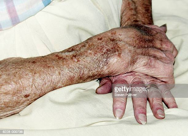 Elderly women with hands crossed