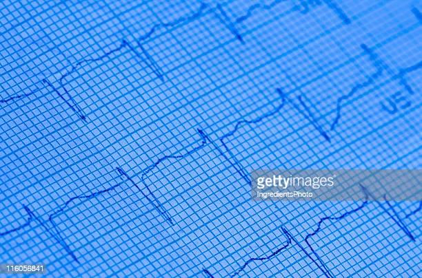 Electrocardiogram (ECG