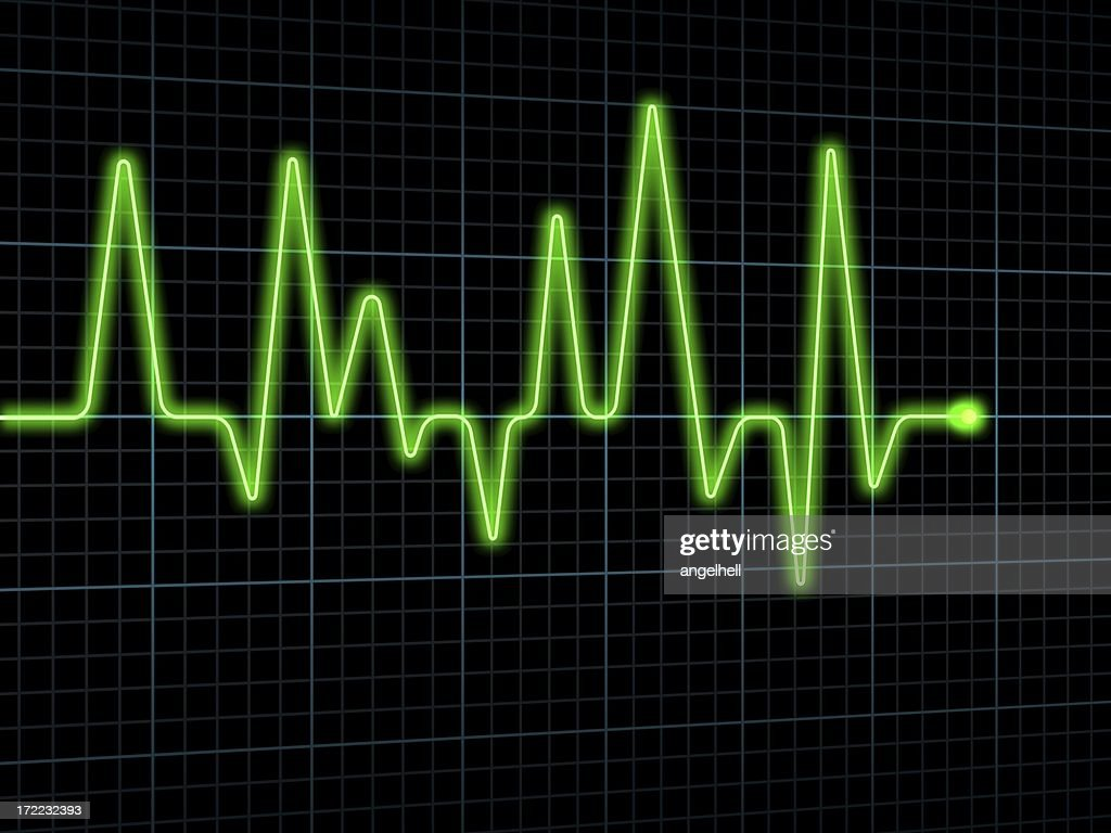 Electrocardiogram Stock Photo Getty Images Diagram Electrocar Diogram Ecg Ekg