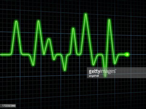 Elettrocardiogramma (ECG o ECG