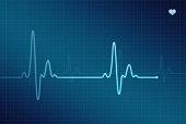 EKG - Electrocardiogram (XXL)