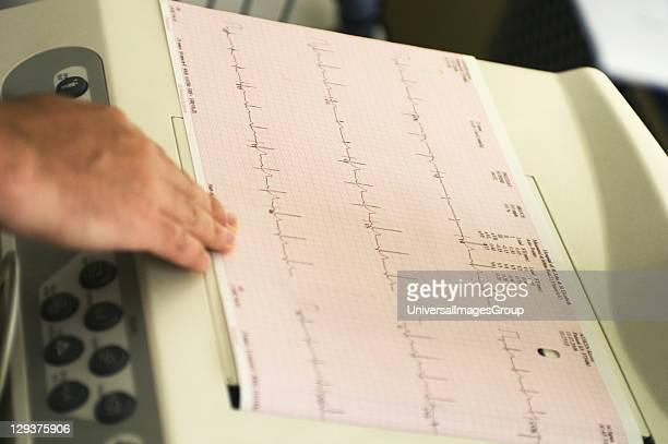 Electrocardiogram recording of patients cardiac cycle produced by electrocardiograph