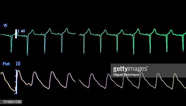 Electrocardiogram.The traces of lives