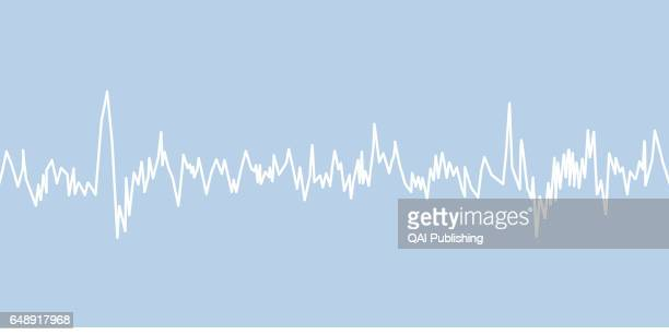 Electroencephalogram The electroencephalogram is a graphic plotting of the electrical activity of the brain printed on paper or displayed on a...
