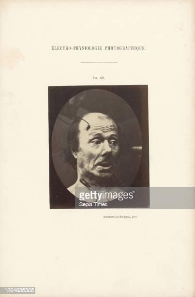 Electro-Physiologie Photographique, Figure 60, Guillaume-Benjamin Duchenne , France, negative 1852 - 1856, print 1876, Albumen silver print, 11.3 _...
