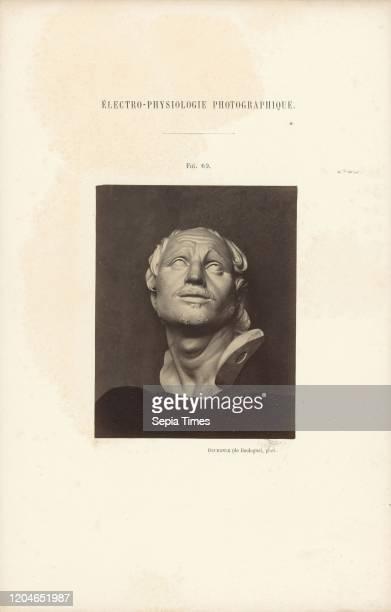 Electro-Physiologie Photographique, Figure 69, Guillaume-Benjamin Duchenne , France, negative 1852 - 1856, print 1876, Albumen silver print, 11.3 _ 9...