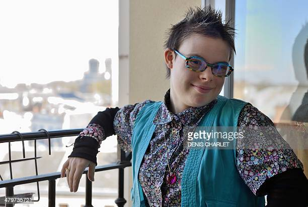 Eleonore Laloux a young girl with the Down syndrome poses at her home on March 20 2014 in Arras northern France At her birth Laloux was described to...