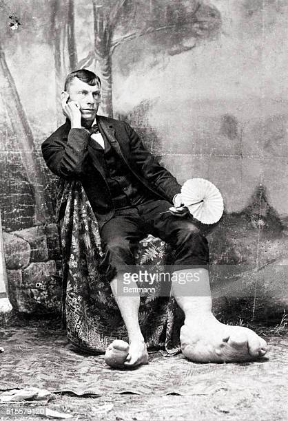 Man with greatly enlarged and misformed legs and feet typical of this affliction Photo ca 1880 BPA2