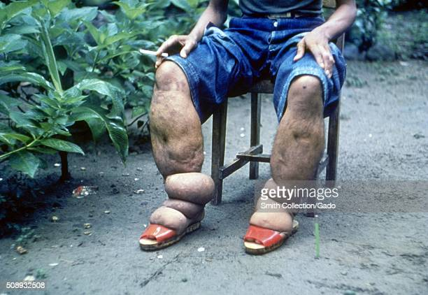Elephantiasis of leg due to filariasis Luzon Philippines Image courtesy CDC 1962