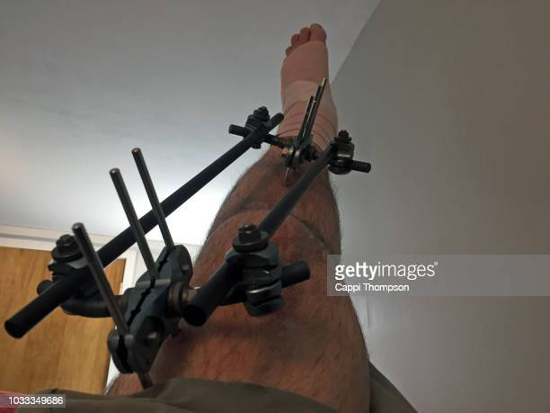 Elevating a swollen leg and foot with tibia fracture stabilized with external fixation