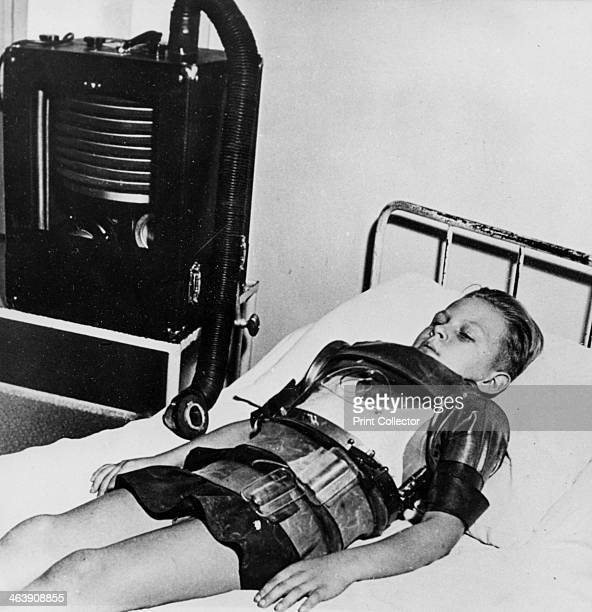 Eleven year old boy in an iron lung Beaujon Hospital Paris c19471951 Part of the Marshall Plan mercy mission The Marshall Plan was a massive...