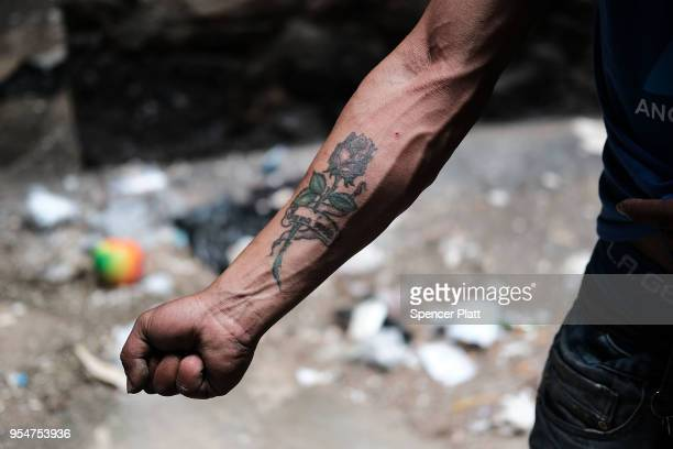Eliezer a 38 year old homeless heroin addict displays his arm in which he injects drugs in the Bronx on May 4 2018 in New York City Eliezer often...