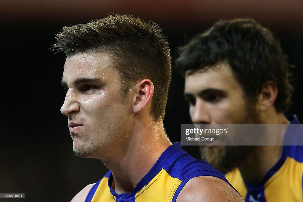 Elliott Yeo (L) of the Eagles walks off after losing two teeth during the round 10 AFL match between the Collingwood Magpies and West Coast Eagles at Melbourne Cricket Ground on May 24, 2014 in Melbourne, Australia.