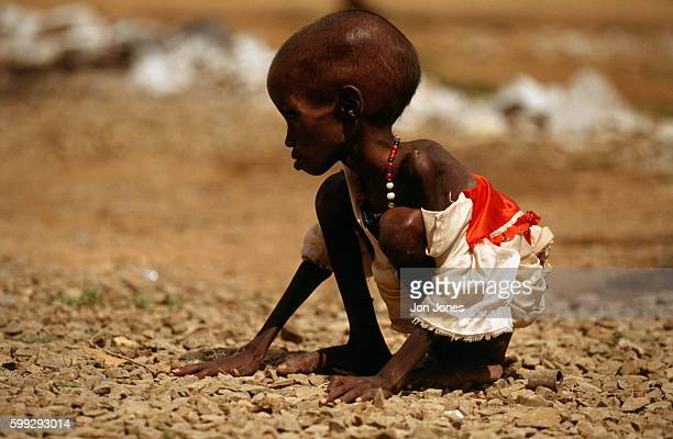 Emaciated body of a starving Somalian child during the famine Between 200300 people are dying of starvation each day   Location Baidoba Somalia