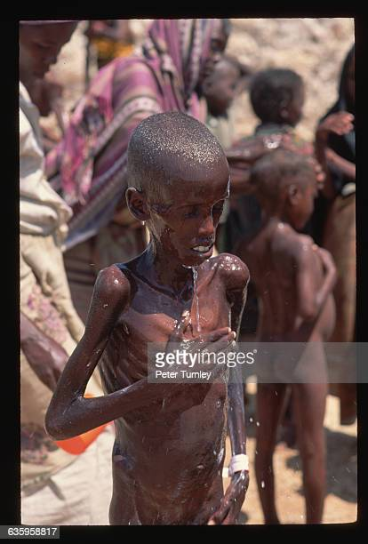 Emaciated young orphan boy gets a bath at a relief center during the famine crisis In the 1980s warlord factions joined together to overthrow then...