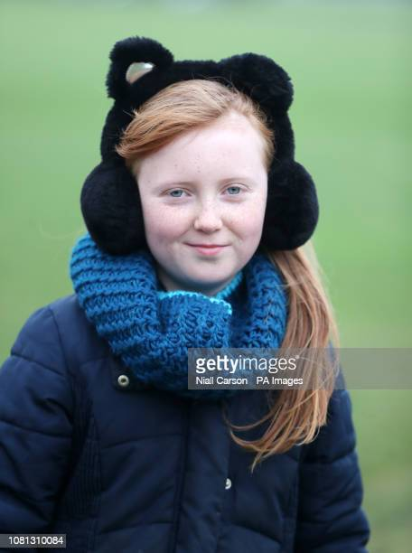 Emer Kenny takes part in the annual Kiss a Ginger day at Phoenix park in Dublin.