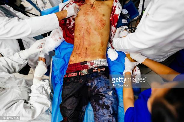 Emergency doctors conduct an acute trauma resuscitation of a young gang member with three gunshot wounds at the emergency department of a public...