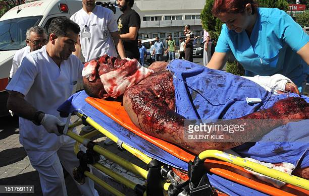 Emergency services carry an injured police officer to the hospital after a suicide bomb attack at the Gazi district police station on September 11 in...