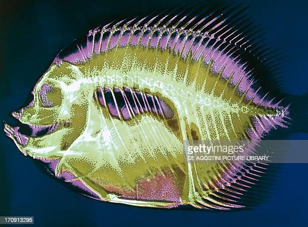 Emperor Angelfish Pomacanthidae Xray image