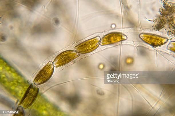 encyonema diatom micrograph - diatom stock photos and pictures