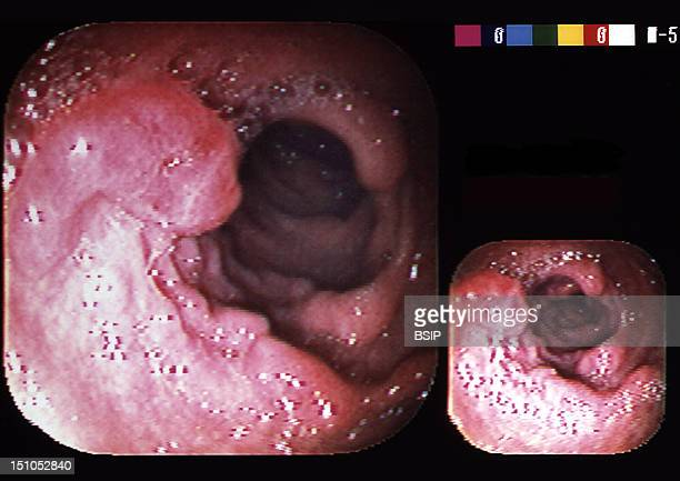 Endoscopic View Of The Sigmoid Loop Showing Colon Cancer