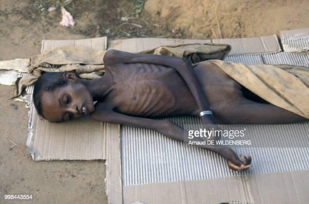 Enfant souffrant de malnutrition en mai 1981 en Somalie