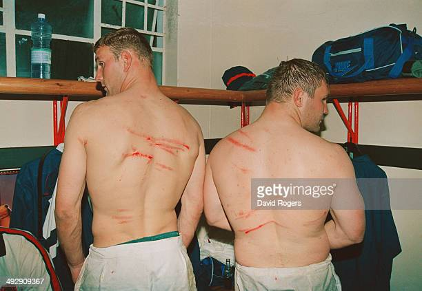 England players Lawrence Dallaglio and John Mallett show off their scars received during the game in the dressing room after the tour match against...