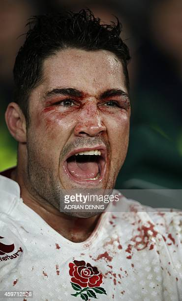 England's bloody centre Brad Barritt reacts on the bench as the final whistle is blown as England beat Australia in the Autumn International rugby...