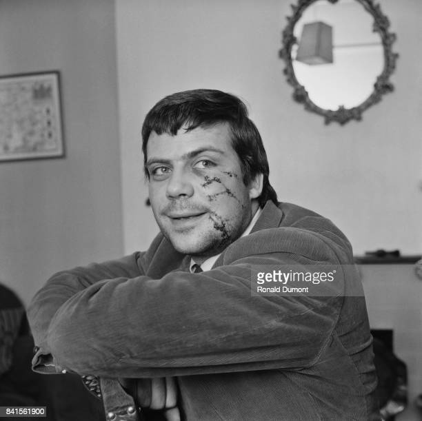 English actor Oliver Reed appears with his face scratched as a result of a brawl in a pub UK 9th April 1964