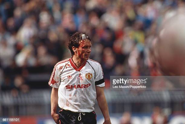 English footballer and defender with Manchester United Mike Duxbury pictured with blood running down his face from a cut to his head during a game...