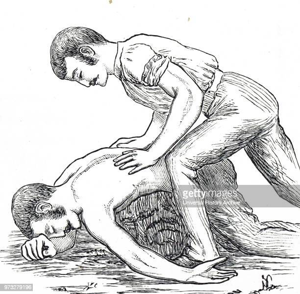 Engraving depicting a man trying to resuscitate a drowning victim by pressing on their back to drain water from the lungs and stomach Dated 19th...