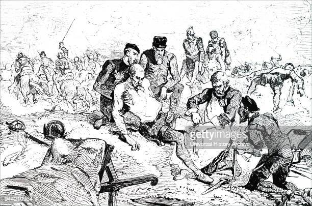 Engraving depicting Ambroise Pare tying off arteries after amputation during the siege of Boulogne Ambroise Pare a French barber surgeon for kings...