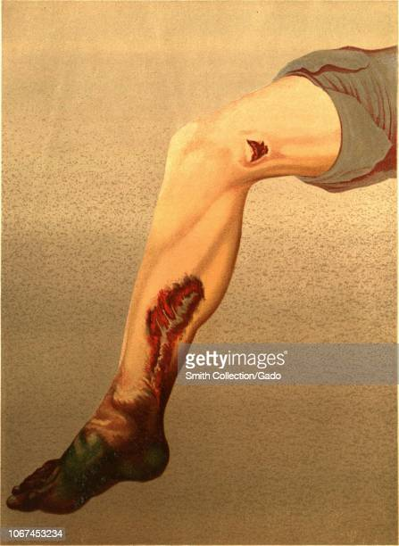 "Engraving of a human leg infected with Gangrene following a gunshot laceration of the femoral artery, from the book ""The Medical and Surgical History..."