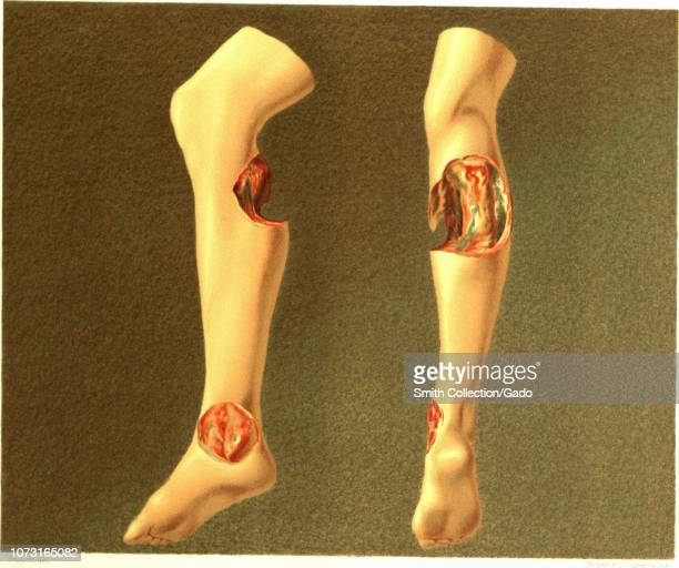"Engraving of human legs showing the effects of hospital gangrene, from the book ""The Medical and Surgical History of the War of the Rebellion"" by..."