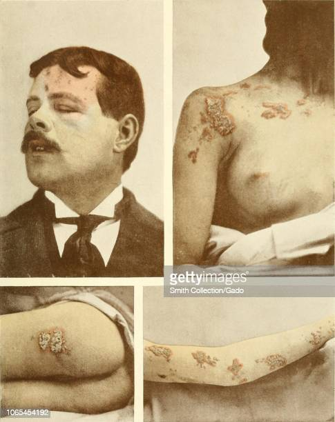 Engravings of different human body parts infected with herpes zoster a viral disease characterized by a painful skin rash with blisters from the book...